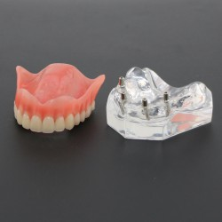Tandheelkundige studie Tanden Model Overdenture Superior met 4 implantaten Demo Model 6001