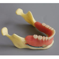 Tandheelkundig Model # 2014 02 - Demible Model Mandible Implant and Overdenture (Geel)